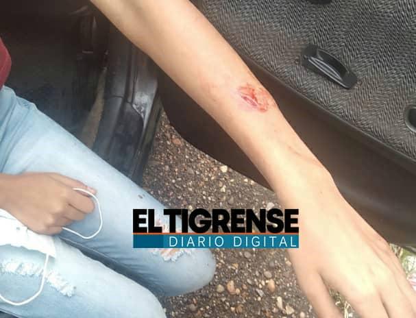 Photo of Adolescente resultó herida por motorizados cuando pretendían robarla
